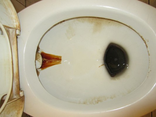 чистка унитаза содой и уксусом фото