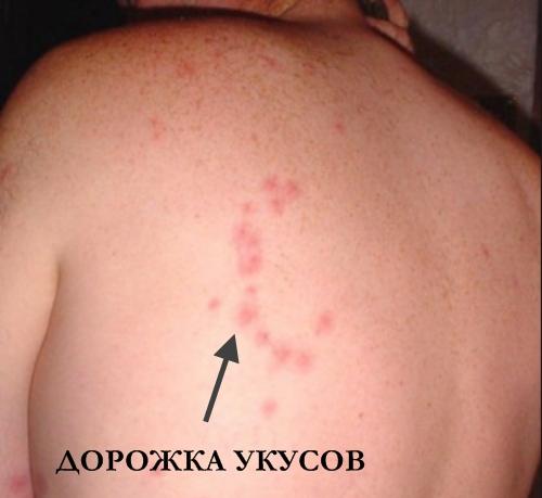 фото укуса постельного клопа
