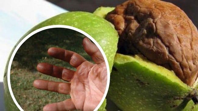 фото пятен от ореха на руках